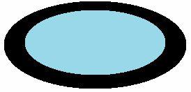 第13級 3号|片目の半盲症や視野狭窄